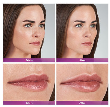 JUVÉDERM VOLBELLA® Before & After Tupelo, MS